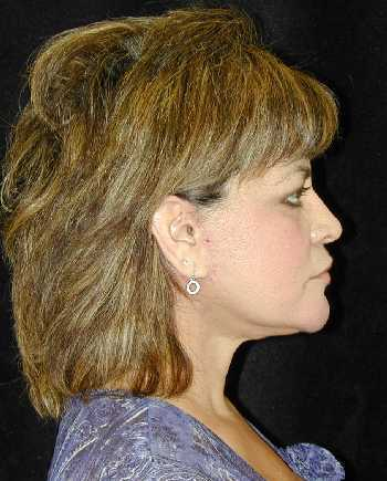 Facelift and Necklift